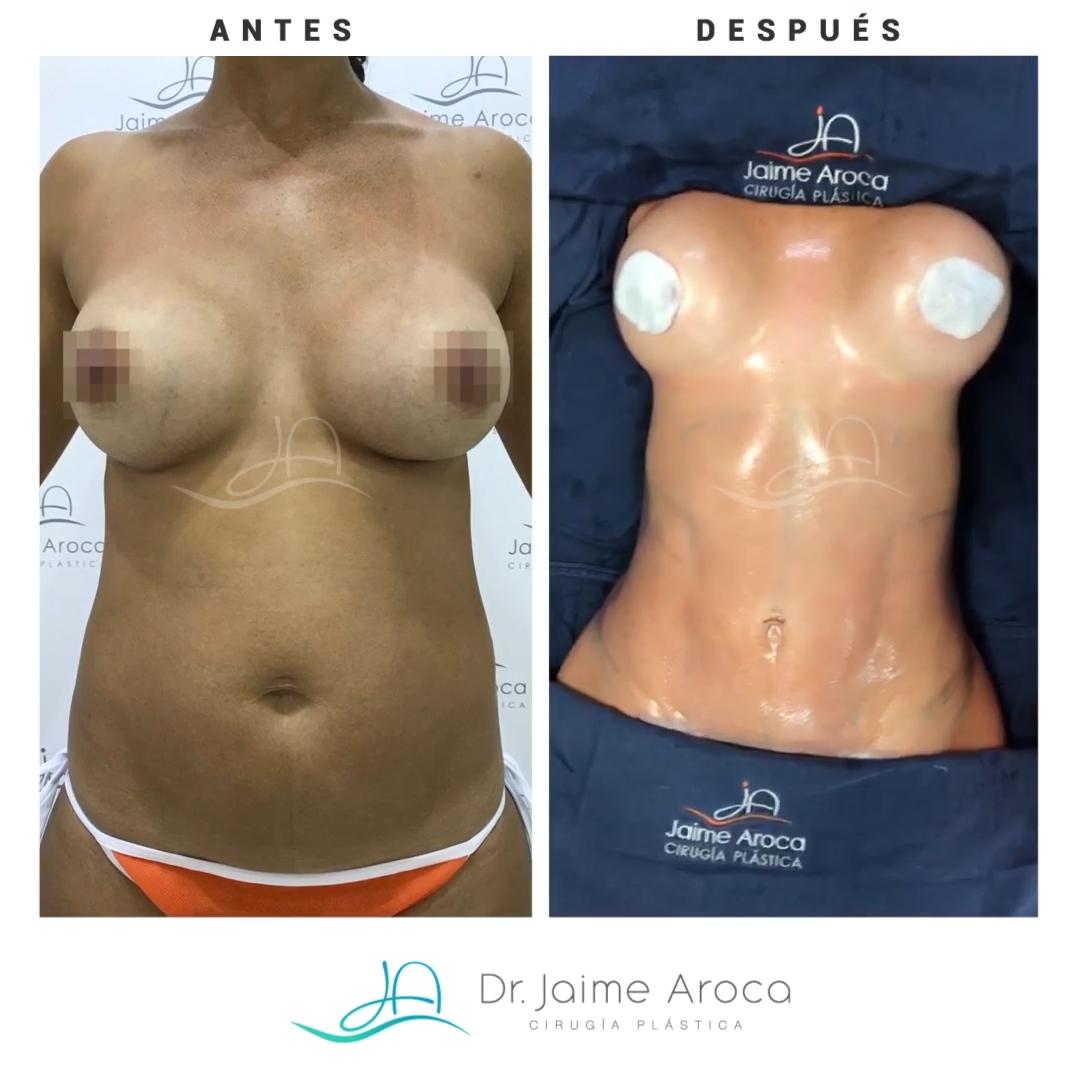 Caso éxito marcación abdominal, recambio de implantes y minidermolipectomía
