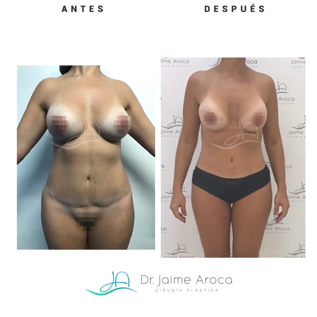 Caso éxito definición abdominal y lipotransferencia glútea