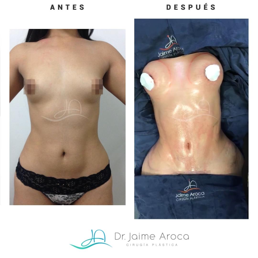 Caso éxito aumento mamario y marcación abdominal