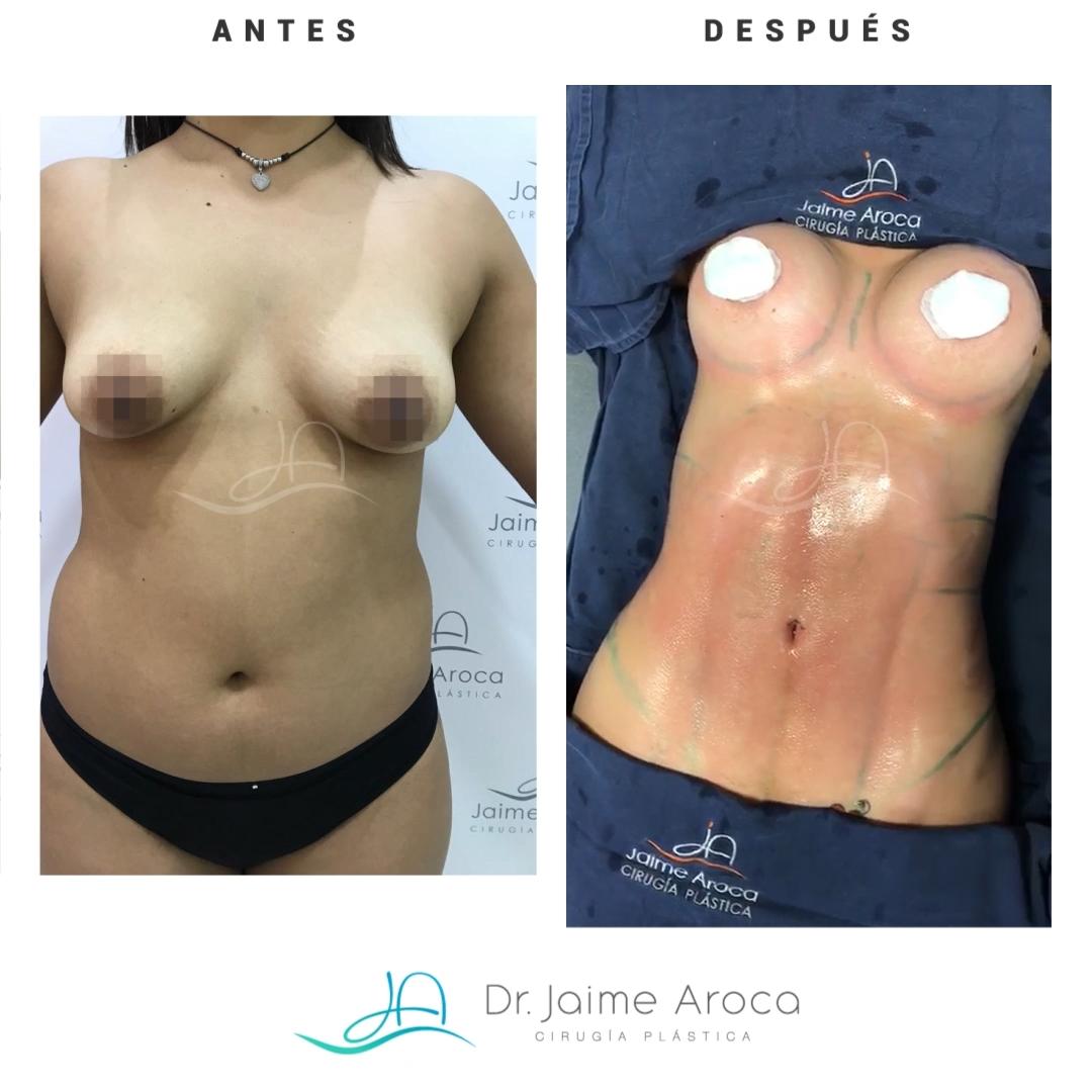 Caso éxito marcación abdominal y aumento mamario