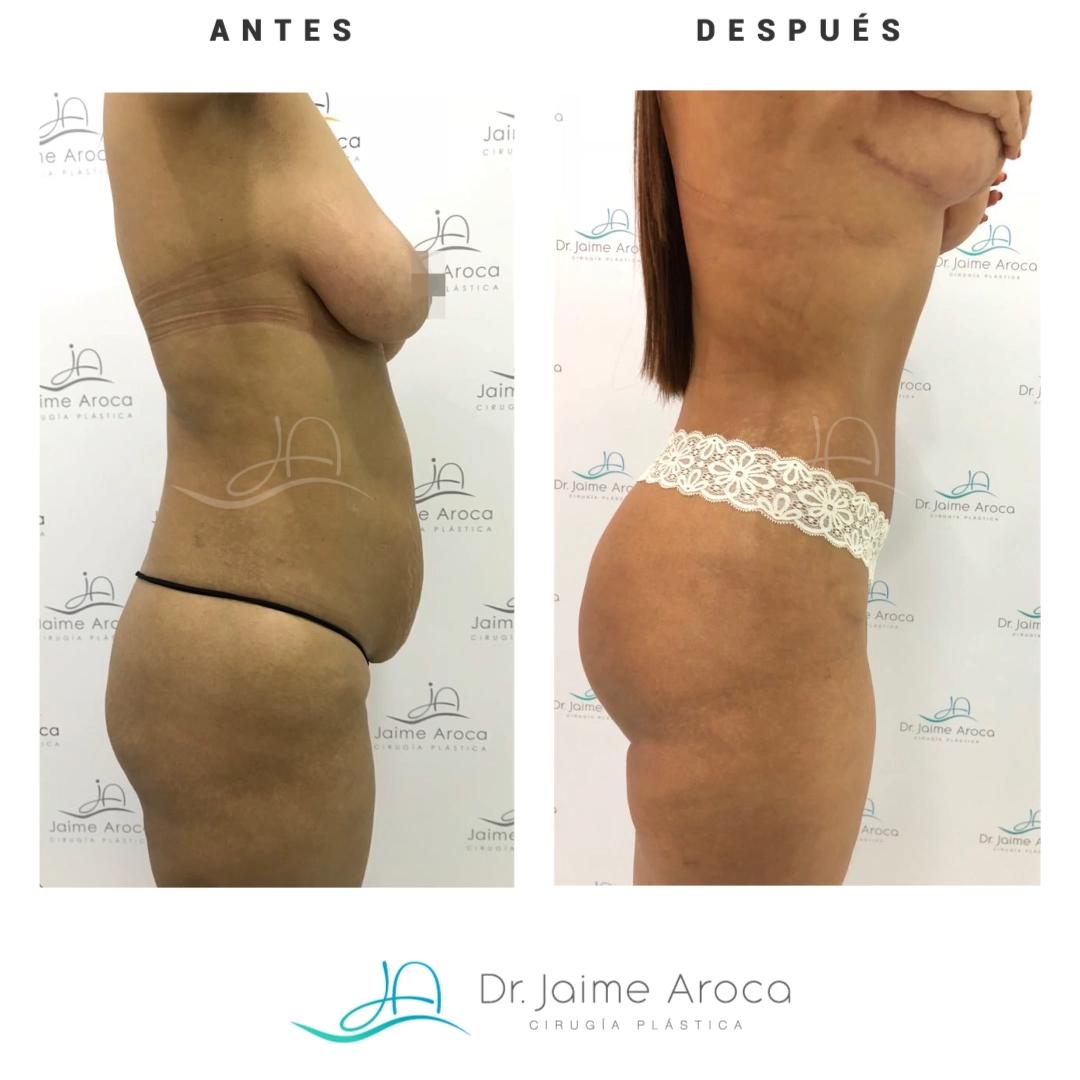 Caso éxito Levantamiento (pexia mamaria), abdominoplastia y lipotransferencia glútea