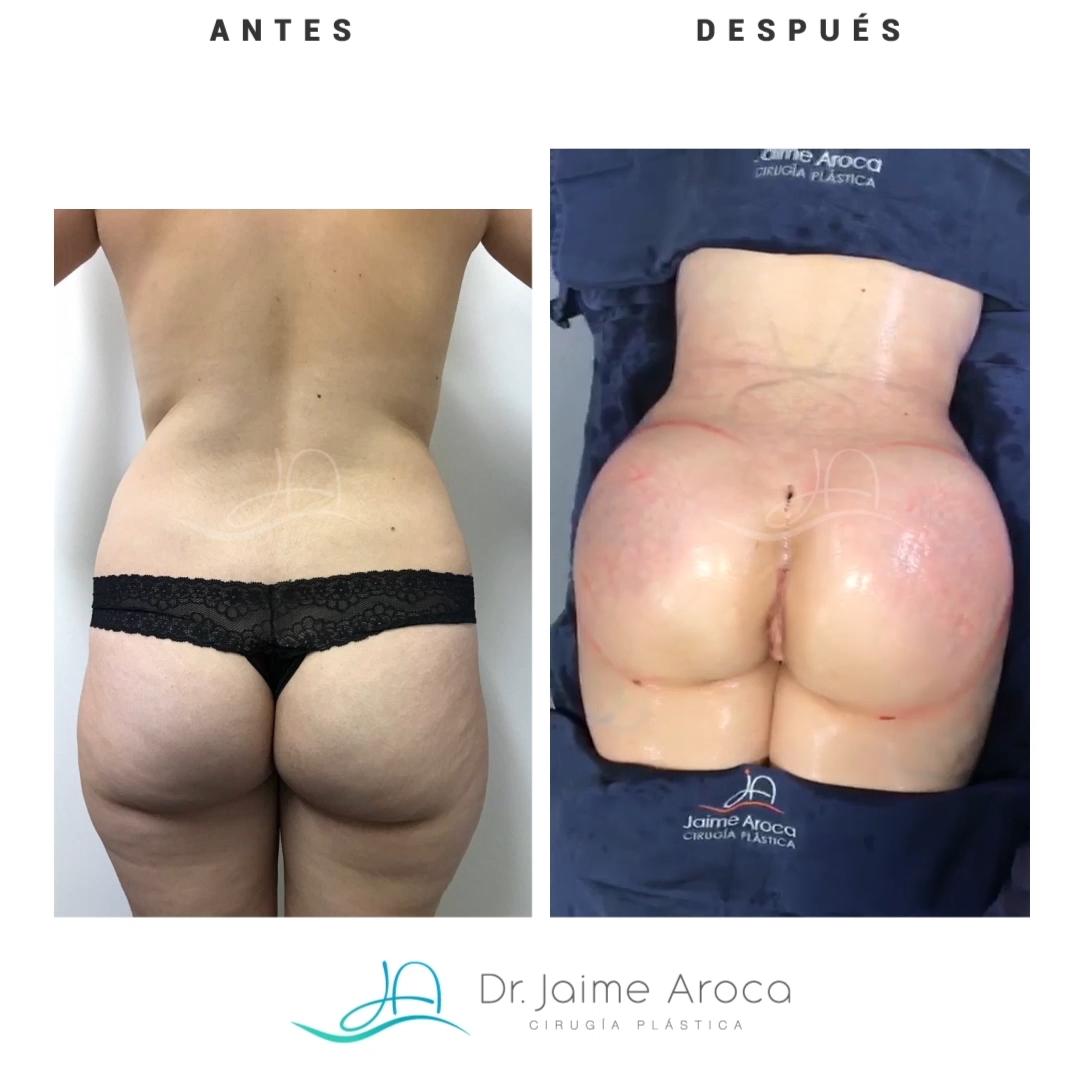 DR JAIME AROCA CASO 34