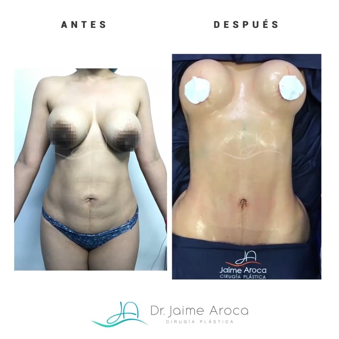 Caso éxito levantamiento mamario y marcación abdominal