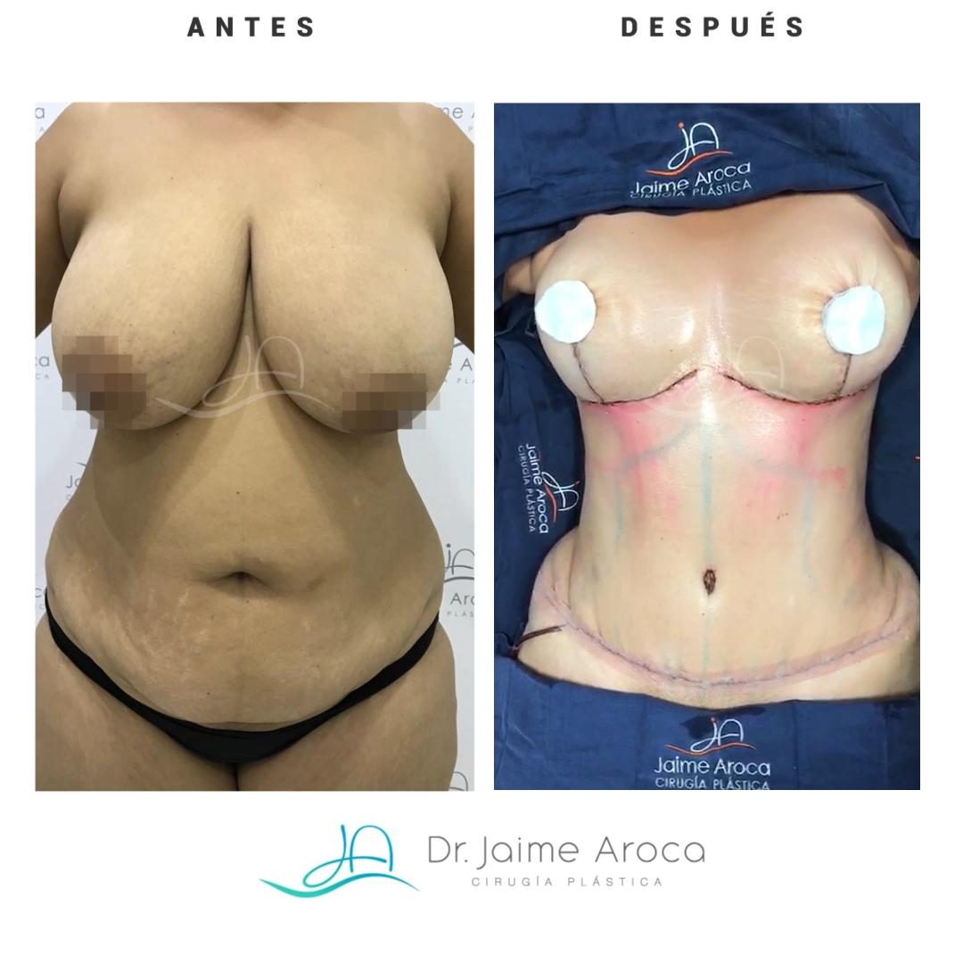 Caso éxito reducción de senos, pexia mamaria y abdominoplastia