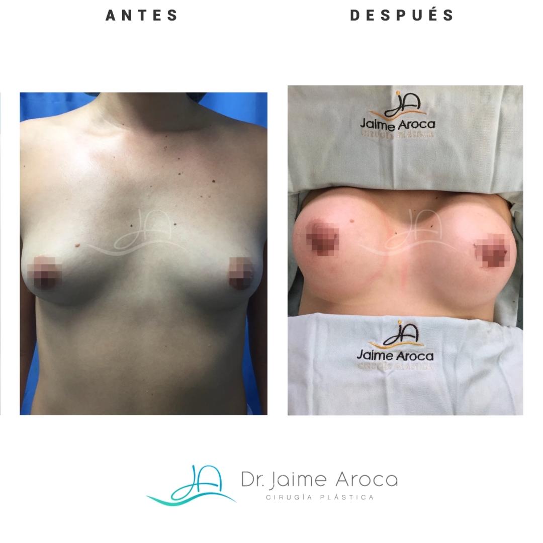 Caso éxito mamoplastia aumento