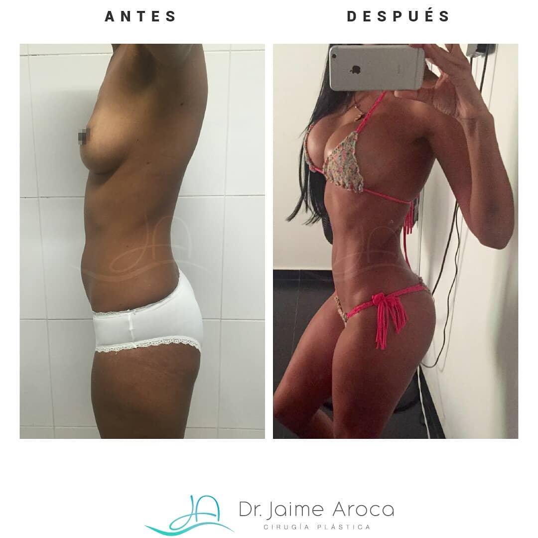 Caso éxito Aumento mamario, Marcación abdominal y Lipotransferencia glútea