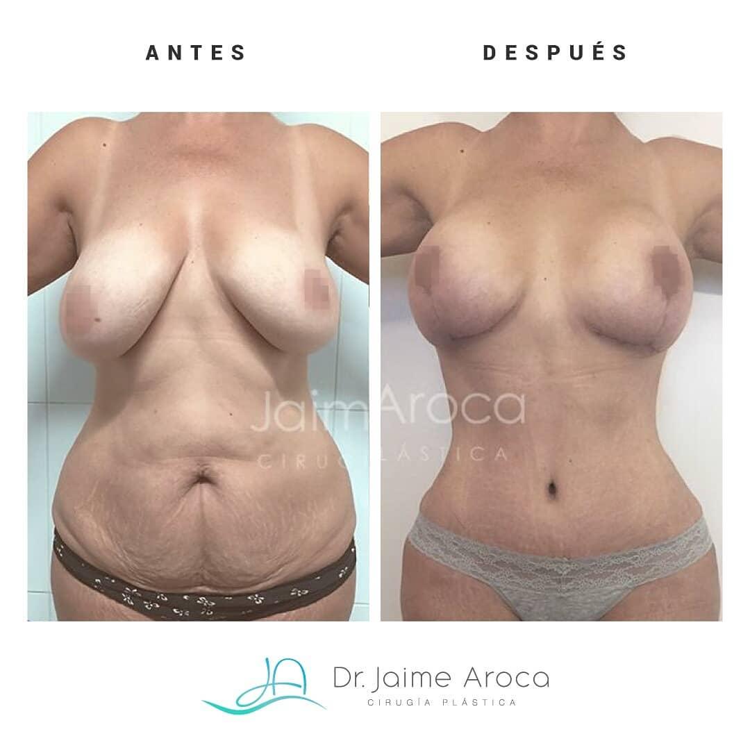 Caso éxito Levantamiento mamario (pexia) y abdominoplastia