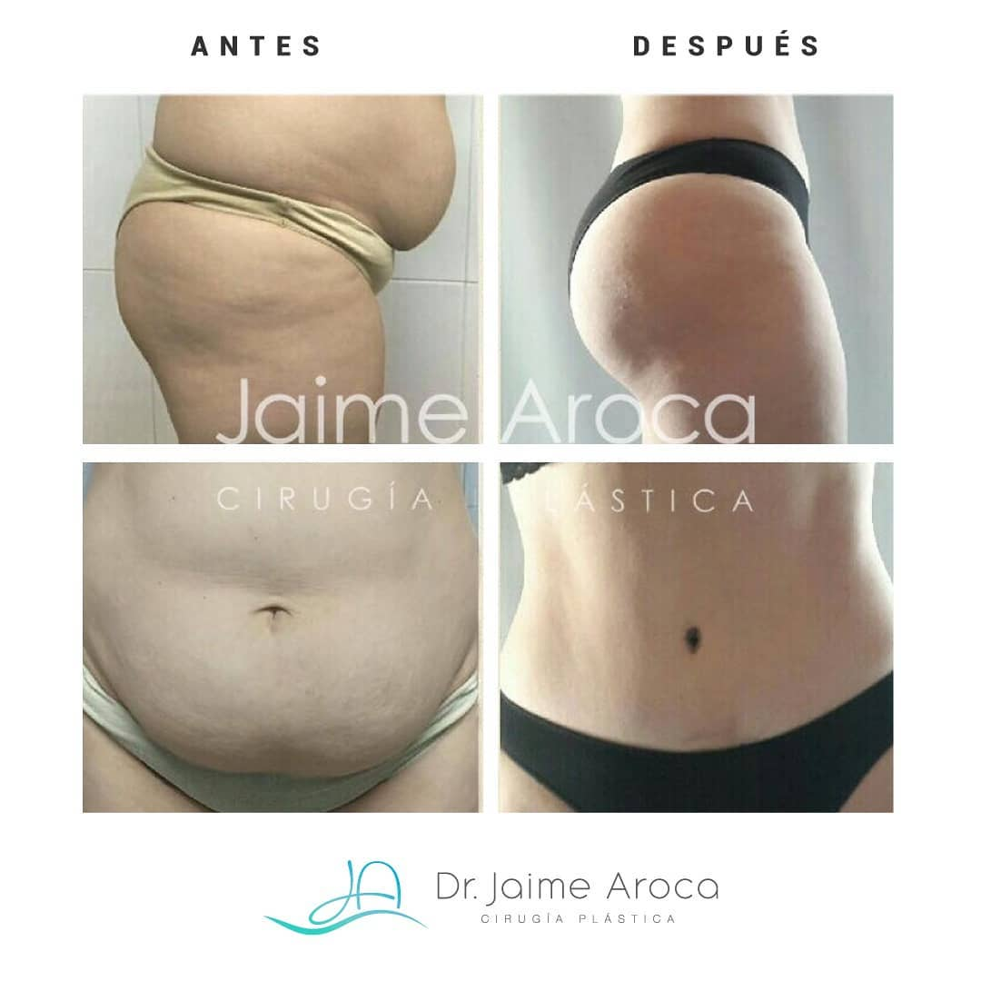 Caso éxito abdominoplastia y lipotransferencia glútea