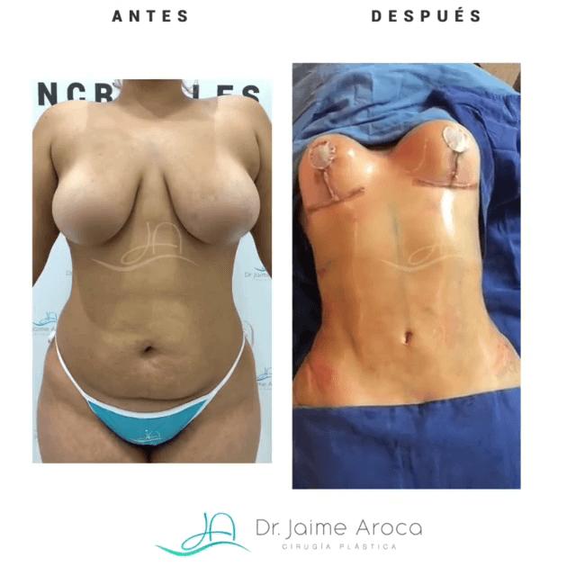 Caso éxito pexia mamaria con implantes y marcación abdominal