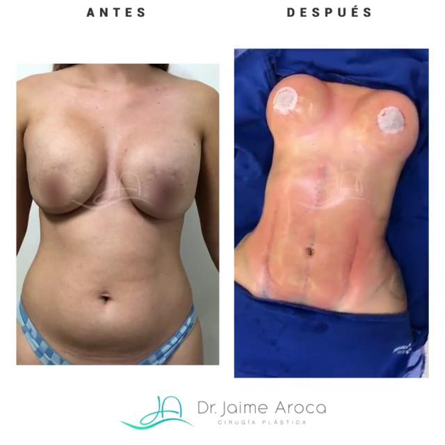 Caso éxito recambio de implantes, pexia mamaria y marcación abdominal